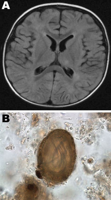 Figure - Possible Pet-associated Baylisascariasis in Child