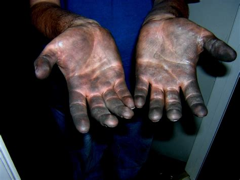 Manly Hands | This is what your hands look like after